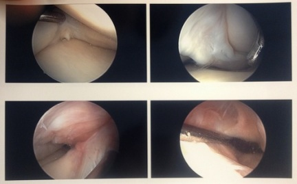 inside-knee-post-op
